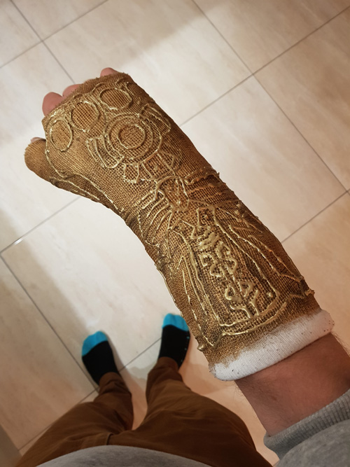 Guy Turns Wrist Cast Into Infinity Gauntlet